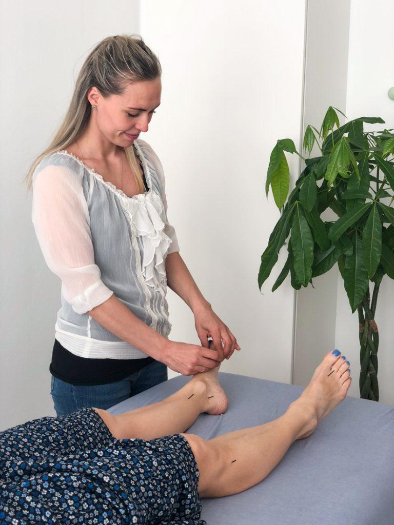akupunktur i aarhus